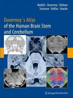 Duvernoy\'s Atlas of the Human Brain Stem and Cerebellum: High-field ...